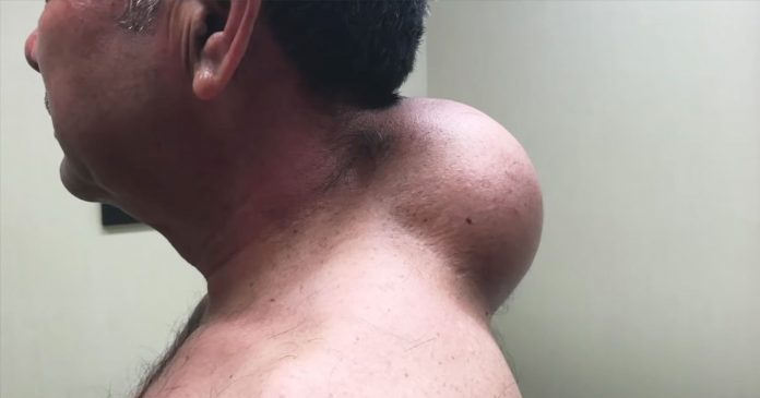Dr. Pimple Popper's Best (& Biggest) Lipoma Videos Of All Time