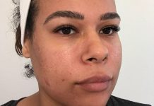 I Stopped Drinking For 30 Days — & My Skin Got So Much Better