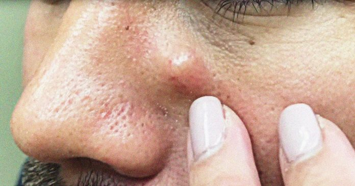 A Breakdown Of The Nastiest Dr. Pimple Popper Cyst Pops Ever Recorded