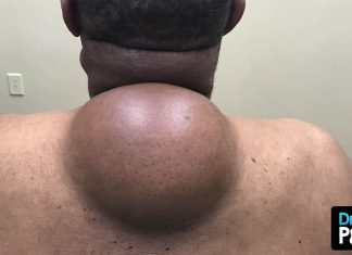A Breakdown Of The Biggest Dr. Pimple Popper Lipoma Extractions Ever