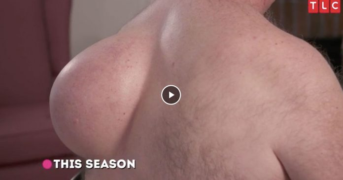 Dr. Pimple Popper Comes Back Tomorrow — & We Have Your First Look At The Premiere