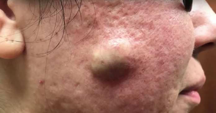 The 5 Craziest Dr. Pimple Popper Cyst Pops Ever Recorded
